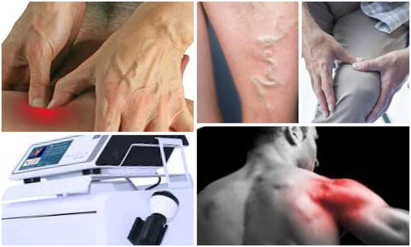 Erken Boşalma Sorunu Nedir Peyronie Tedavisi Nasıl Yapılır?