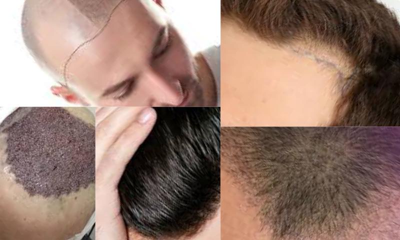 Perte De Cheuveux-Saç Dökülmesi